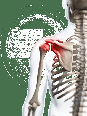 Darstellung eines Skeletts mit Schulterbeschwerden