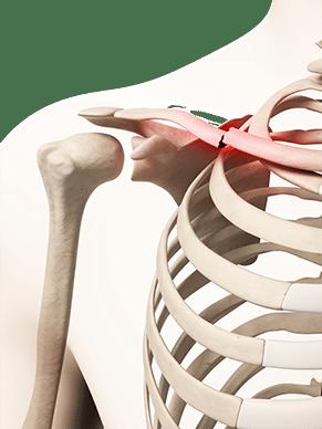 Ausschnitt Oberkörper Skelett mit Knochenbruch