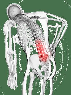 Darstellung von Schmerzen an der Wirbelsäule