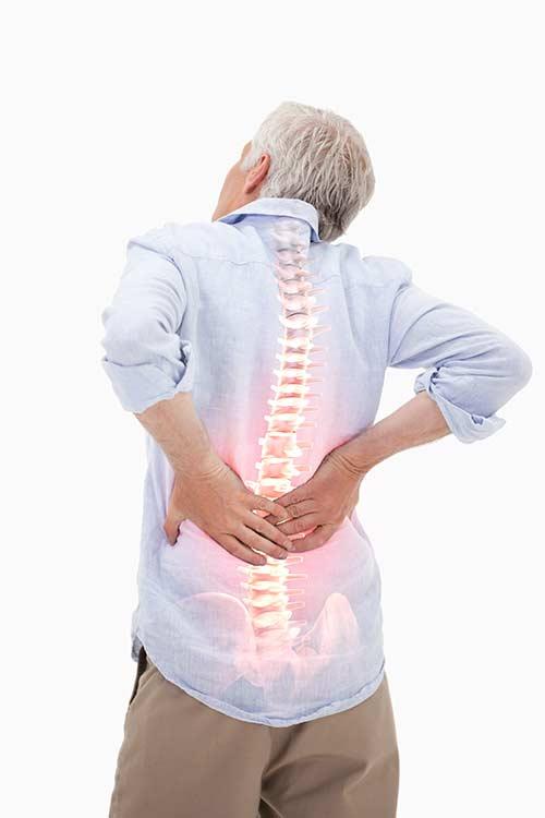 Darstellung von Abnutzung der Wirbelsäule als Ursache für Spannungskopfschmerzen