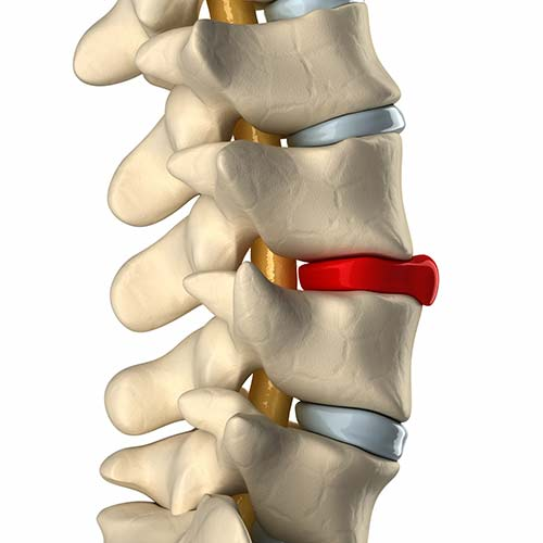 Wirbelsäulenverletzungen als Ursache von Nackenschmerzen