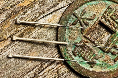 Akupunktur als Teil der Traditionellen Chinesischen Medizin