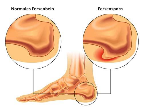Darstellung Vergleich normales Fersenbein und Fersensporn