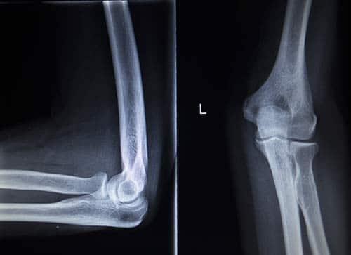 Röntgen des Ellenbogens - Tennisarm