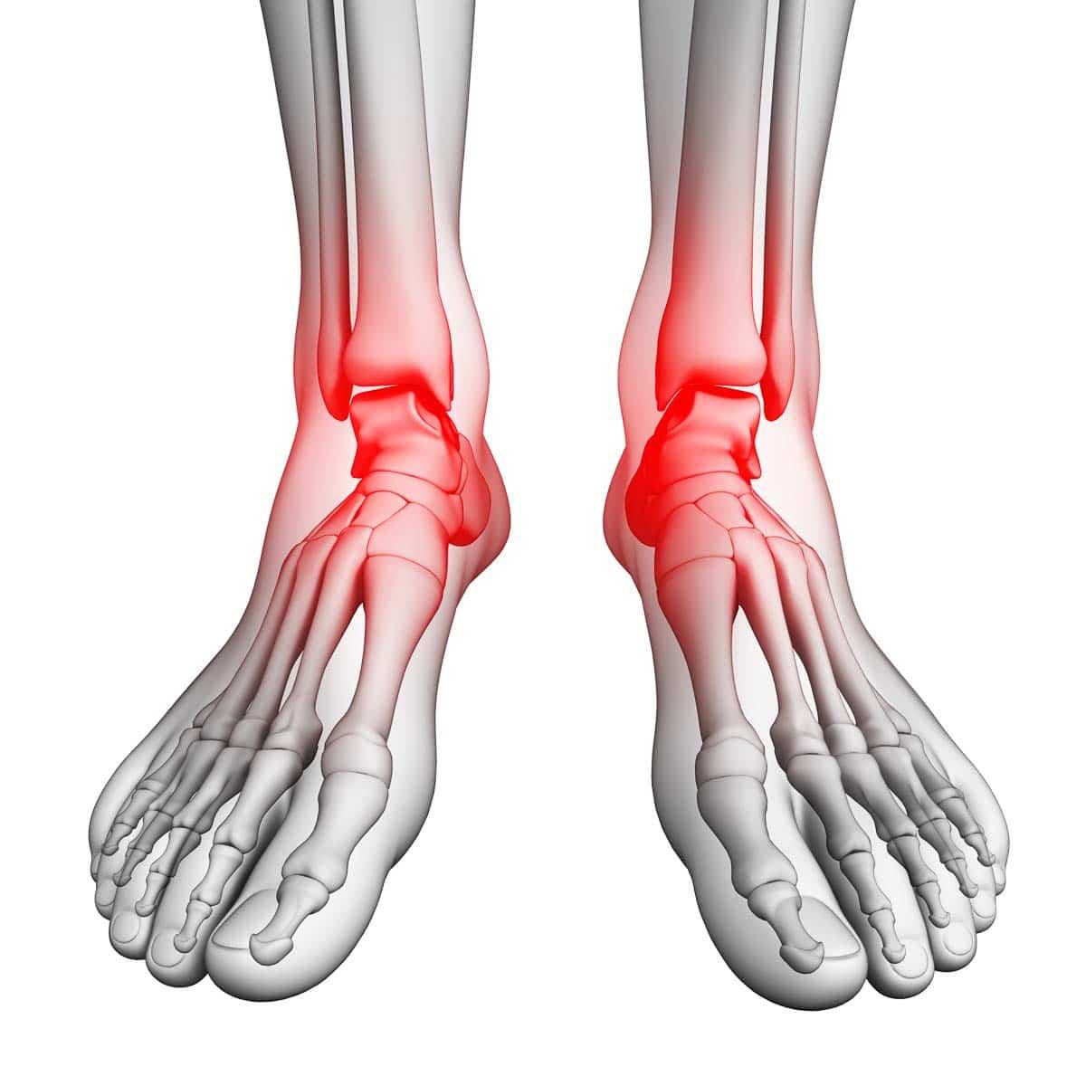 Darstellung Füße - Sprunggelenksarthrose