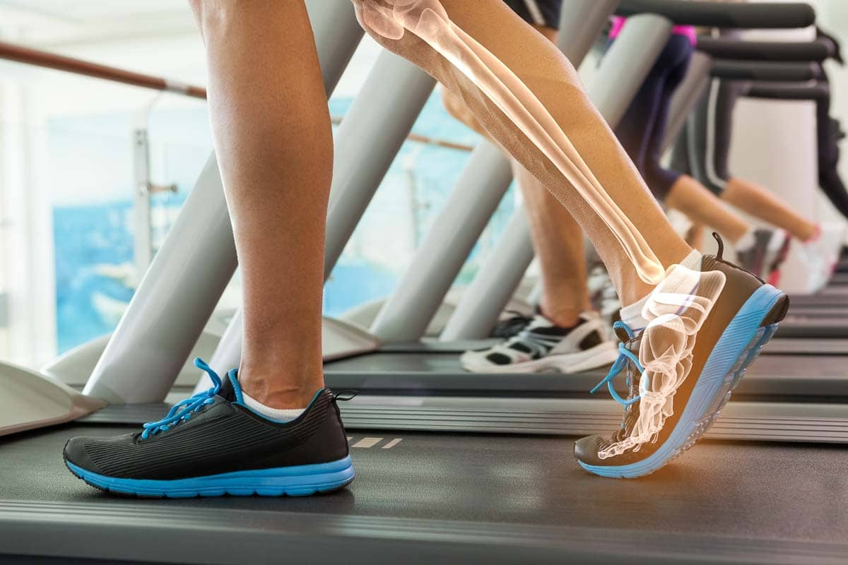 Laufanalyse präventiv für Sportler - Piriformis-Syndrom