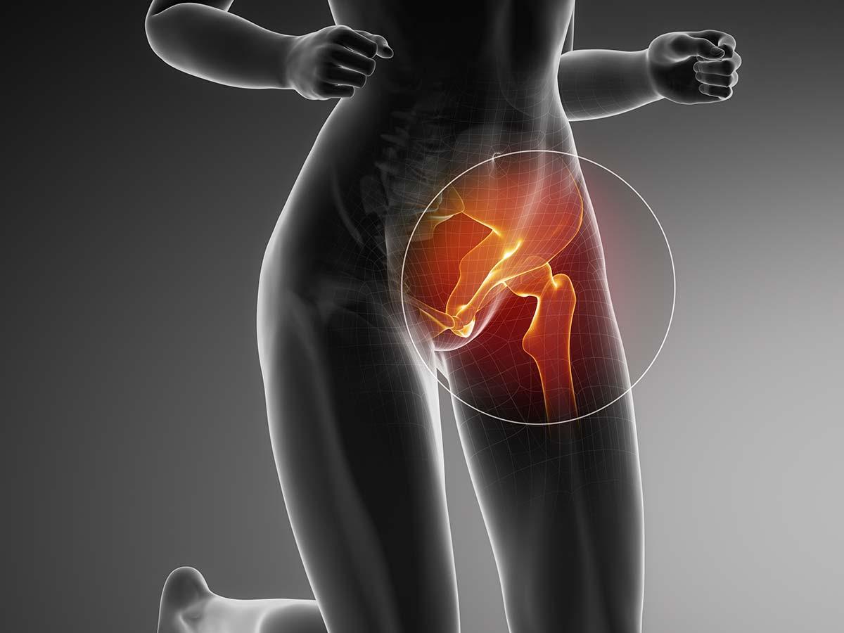 Schmerzen in der Leiste - Ursachen von Leistenschmerzen - Anatomische Darstellung