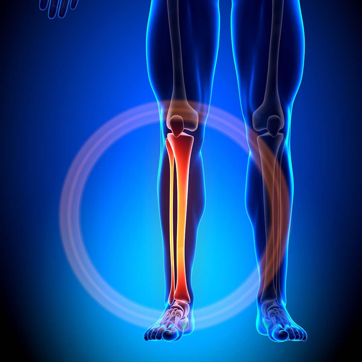 Schienbein Schmerzen Darstellung Anatomie
