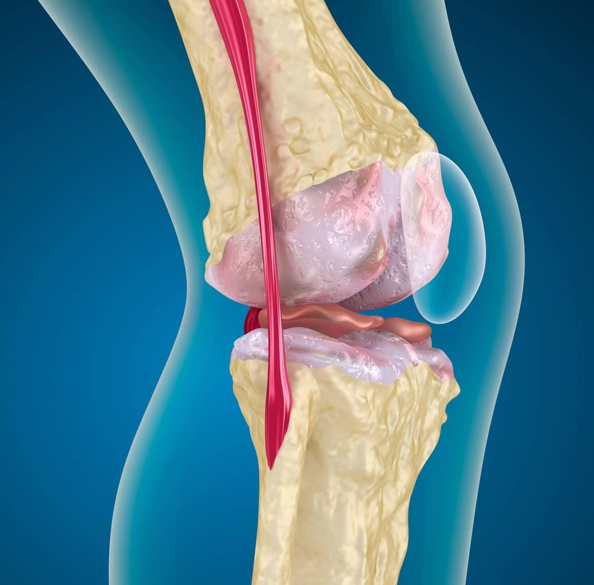 Darstellung Knorpelschaden am Knie